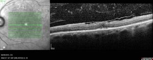 membraneepi-retinienne