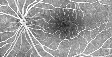 MALADIES Ophtalmologie